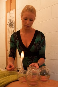 Cupping - Acupuncture Clinic Sunshine Coast