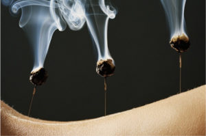 acupuncture for smoking