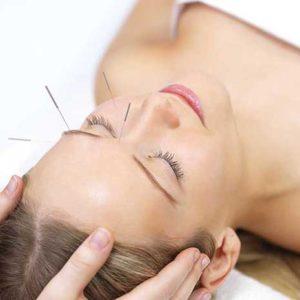 acupuncture caloundra
